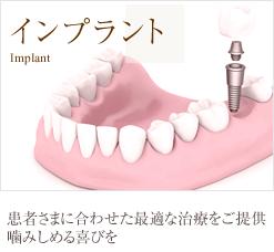 インプラント 患者さまに合わせた最適な治療をご提供噛みしめる喜びを